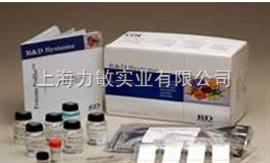 RD 317-ILB-050R&D Recombinant Human/mouse IL-17A重组人/小鼠白介17细胞因子