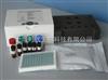 小鼠β氨基己糖苷酶AELISA试剂盒,(β-hexosaminidaseA)Elisa试剂盒